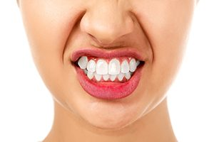 Woman with Bruxism